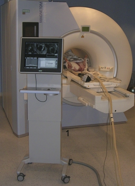 Interventional magnetic resonance imaging suite with 1.5 T scanner and in-room monitor console (1).