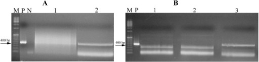 PCR products amplified from strains LEGE 06010 and LEGE 06018, Leptolyngbya sp. and Oscillatoria sp, respectively, with HEPF/HEPR primers. (A) Lane 1: strain LEGE 06025 (data not shown); Lane 2: strain LEGE 06010; M-1Kb; (B) Lanes 1 and 2: strain LEGE 06025 (data not shown); Lane 3: strain LEGE 06018. M: Marker; P: Positive control (M6 strain), N: Negative control.