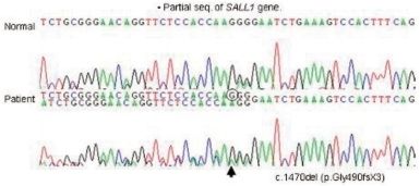 Mutation analysis of the SALL1 gene in the patient shows a single base pair deletion at nucleotide position 1470 (c.1470delG) in exon 2. The same type of mutation was found in his mother.