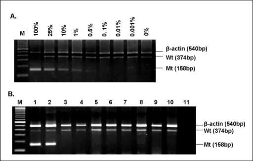 Sensitivity of T315I mutation detection by AS-PCR method . Serial dilutions of T315I mutants with wild-type cells demonstrates 158-bp mutant bands in 100%, 25%, 10%, 1%, and 0.5% mixtures (Figure 1A); Representative samples of T315I mutated cell lines (Lane 1), T315I mutated CML case, (Lane 2), seven non-mutated non-leukemic cases (Lanes 3-9), and BA/F3 cell lines (Lane 10) are shown in Figure 1B; Lane 11, blank; Lane M, a 100-bp DNA marker.