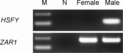 Gel electrophoresis of the real time PCR product of both male and female DNA samples for HSFY and ZAR1.HSFY shows male-specific amplification indicating that the target genes are on the Y chromosome. Zygote arrest 1 (ZAR1) is the autosomal control gene which shows amplification in both the male and female sample. N) Negative control M) 100 bp ladder – the top and bottom band represent 200 and 100 bp, respectively (Invitrogen Canada Inc.).