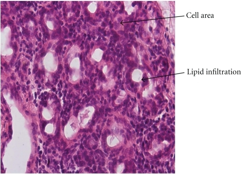 In group B1, lipid infiltration of the parotid parechyma, presence of lipocytes and nuclei abnormalities (increased cell area and duct's diameter, decreased duct's number) were observed (haematoxylin eosin— original magnification ×400).