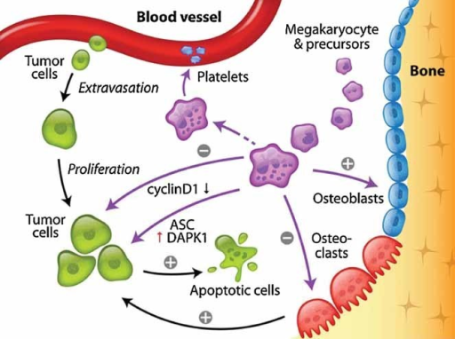 A schematic model to summarize the findings mks inhibi open i a schematic model to summarize the findings mks inhibit prostate cancer cell growth in bone ccuart Choice Image