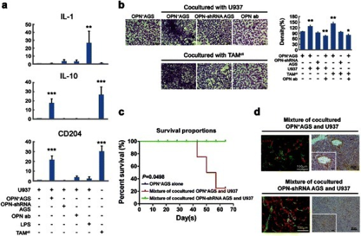 The co-expression of OPN and M2-TAMs promotes gastric tumorigenesis. (a) The expression of M1/M2 markers in U937 cells was analyzed after co-culture treatment by real-time PCR. LPS-treated U937 cells expressed IL-1 as M1 macrophages, and U937 cells alone were used as a negative control. TAMcli cells isolated from clinical specimens were used as a positive control. After co-culture with OPN+-AGS cells, the U937 cells differentiated into M2-TAMs expressing high levels of CD204 and IL-10. (b) After 72 hours of co-culture with U937 or TAMcli cells, the invasiveness of the OPN+-AGS cells increased but that of OPN-shRNA AGS cells did not. The increased cell invasiveness was also blocked by an OPN monoclonal antibody. (c) The mixture of co-cultured OPN+-AGS and U937 cells inoculated into nude mice showed poor survival compared with a mixture of co-cultured OPN-shRNA AGS and U937 cells or OPN+-AGS cells alone (p = 0.0498). (d) The neovascularization in the xenografts was shown by double-staining with anti-CD31 and anti-αSMA antibodies. Less neovascularization with normal vascular structure was found in xenografts of a mixture of co-cultured OPN-shRNA AGS and U937 cells.