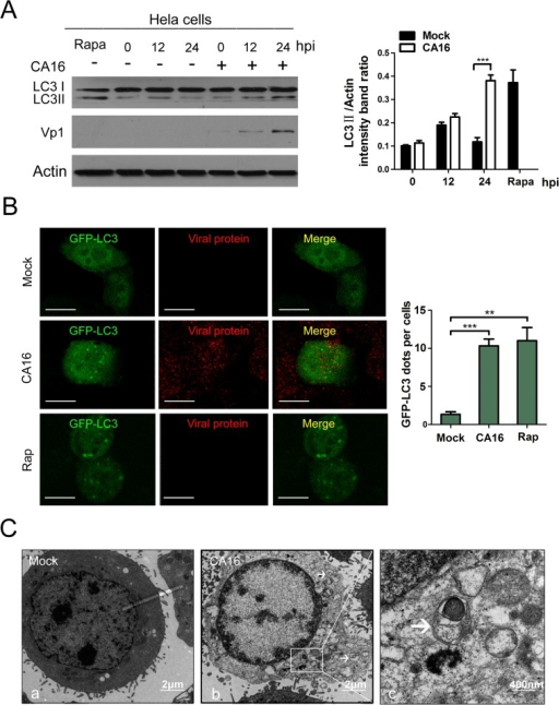 CA16 infection triggers autophagy in infected cells.(A) Western blotting (WB) analysis of LC3 protein expression in HeLa cells infected with Coxsackievirus A16 (CA16). Cells were infected with CA16 at an MOI of 1. After 1 h of virus absorption at 37°C, the cells were further cultured in maintenance medium. Cells were harvested at the indicated time points and blotted with anti-LC3B and Vp1 antibodies; the results were compared to uninfected control cells. (B) GFP-LC3 dots and viral proteins expression were visualized via confocal microscopy. HeLa cells were transfected with GFP-LC3 plasmid for 24 h, followed by CA16 infection(MOI = 1) or treated with Rapamycin and the GFP-LC3 aggregations in the cells were assessed via confocal microscopy. The localization of virus was determined by indirect immunofluorescence with a human anti-CA16 sera and TRITC-conjugated anti-human IgG. Representative images are shown. Scale bar, 8μm. (C) Autophagic vacuoles were detected via transmission electron microscopy (TEM). HeLa cells infected with CA16 (MOI = 1) were processed and analyzed at 24 hpi for the accumulation of autophagosome via electron microscopy. White arrows indicate representative autophagosomes. (c) represents the higher-magnification views of (b).