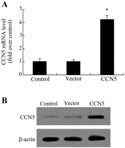 CCN5 transfection enhances CCN5 expression in primary fibroblasts. Primary fibroblasts were obtained from the tail skin of rats and cultured in DMEM medium. Lentivirus plasmid pWPT-GFP was introduced to construct the recombinant pWPT-CCN5 plasmids, following packaging with vectors of pCMV-VSV-G and pCMV-dR8.91. The corresponding transfection effect of CCN5 mRNA (A) and protein levels (B) was assessed individually with RT-PCR and western blotting. *P<0.05.