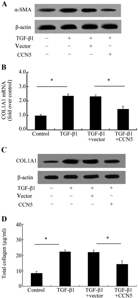 Effect of CCN5 on the profibrotic phenotype of fibroblasts induced by transforming growth factor-β (TGF-β1). The isolated fibroblasts were transfected or not with LV-CCN5 prior to TGF-β1 stimulation. The expression levels of α-smooth muscle actin (α-SMA), a specific marker of myofibroblasts, were analyzed by western blotting (A). mRNA (B) and protein levels (C) of CLO1A1 were asssessed. The total collagen concentration was assessed using a Sircol assay kit (D). *P<0.05.