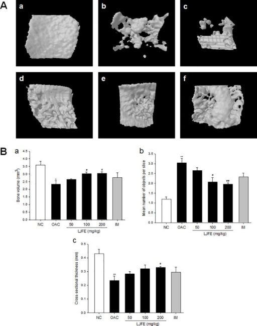 Three-dimensional micro-computed tomography images and parameters of lateral subchondral bone of the knee of the tibiae.(A) 3D micro-computed tomography (CT) images of the lateral subchondral bone. (a) Normal control, (b) OA control, (c) OA+70% ethanolic extract of Litsea japonica fruit (LJFE) 50 mg/kg, (d) OA+LJFE 100 mg/kg, (e) OA+LJFE 200 mg/kg, and (f) indomethacin 2 mg/kg. (B) The lateral subchondral bone parameters were monitored using a 3D micro-CT analysis program. The lateral subchondral bone parameters assessed were as follows: (a) bone volume (BV, mm3), (b) mean number of objects per slice (Obj.N.), and (c) cross-sectional thickness (Cs.Th, mm). The results are mean ± standard error of mean (SEM) for six rats per group (*p < 0.05, **p < 0.01 compared to NC, #p < 0.05, ##p < 0.01 compared to OAC).