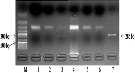 Detection of R261Q mutation in 7 samples. PCR products (285 bp) were digested with HinfI. The presence of R261Q mutation removes restriction site for HinfI enzyme. Individuals homozygous for R261Q mutation show a single un-cut band of 285 bp. Individuals heterozygous for R261Q mutation show two bands of 285 and 123 bpLane M: 50 bp marker (Fermentas). Lanes 1,2,4,5 &6: Without R261Q mutation. Lane 3: Heterozygous for R261Q mutation. Lane 7: Homozygous for R261Q mutation