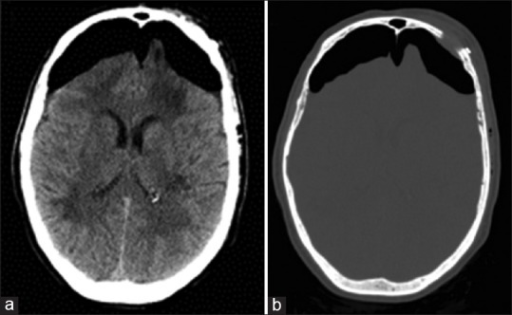 (a) Unenhanced axial computed tomography image of the brain demonstrates bilateral subdural areas of hypoattenuation with compression of both frontal lobes. (b) Postoperative computed tomography bone window image demonstrating the small supraorbital craniotomy