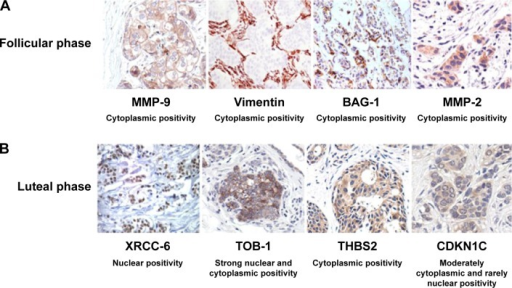 Immunohistochemical analysis of paraffin-embedded human breast carcinoma tissues.Notes: MMP-9, VIM, BAG-1, MMP-2, XRCC-6, TOB-1, THBS2, and CDKNIC expression in breast cancer tissues was visualized using corresponding antibodies. Immunostaining of VIM, BAG-1, MMP-2, and THBS2 showed a clear preference for the nucleus alone of the tumor cells. TOB-1 showed a strong staining in the cytoplasm and nuclei of the tumor cells. CDKNIC showed moderate cytoplasmic, and rare nuclear, positivity. Figure A shows cytoplasmic positivity of MMP-9, Vimentin, BAG-1, and MMP-2 in follicular phase. Figure B shows cytoplasmic/nuclear positivity of XRCC-6, TOB-1, THBS2, and CDKN1C as indicated, in luteal phase. All the images were taken at 20× magnification.Abbreviations: MMP-2, matrix metalloproteinase-2; VIM, vimentin; THBS2, human thrombospondin-2; BAG, BCL-2-associated athanogene-1.