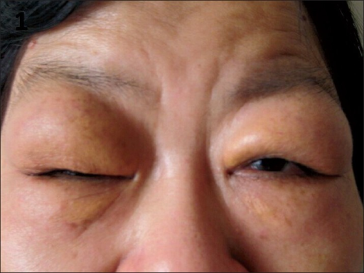 Clinical photograph (patient 18) showed bilateral uncongested symmetrical swelling of the upper eyelids, which was asymptomatic and nontender to palpation.