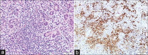 Histopathology of benign lymphoepithelial lesion (patient 2). (a) Marked lymphoplasmacytic infiltration with lymphoid follicles and the destruction and atrophy of the lacrimal gland lobules with periductal fibrosis were observed (hematoxylin-eosin staining, original magnification ×40). (b) Immunostaining for immunoglobulin G4 showed abundant IgG4-positive plasma cells infiltrated the lesion (original magnification ×20).