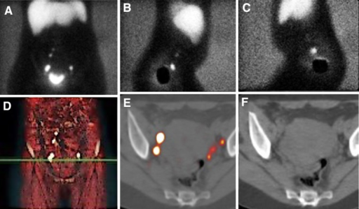 Cervical cancer. Planar images show a bilateral drainage in pelvic area (a–c). Volume-rendering image displays the level of sentinel nodes (d). SPECT/CT axial-fused images showing two separate nodes with high tracer uptake in right obturator fossa as well as three tiny nodes in left side (e). Corresponding axial CT slice (f)