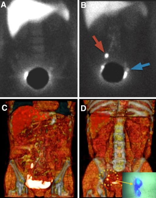 Endometrial cancer. Early planar image showed a very faint left node. A lied shield covered the injection area and high activity on the right side was supposed to be a partial zone of the injection area (a). Delayed planar image displays a right sentinel node (red arrow) and the previously observed left sentinel node (blue arrow). 3D volume-rendering image shows the same node distribution like b (c). A more detailed analysis of SPECT/CT data and 3D reconstructed images showed two posterior and caudal nodes (dotted circle) previous to the marked as sentinel node in b corresponding to external iliac nodes during surgery (arrow)
