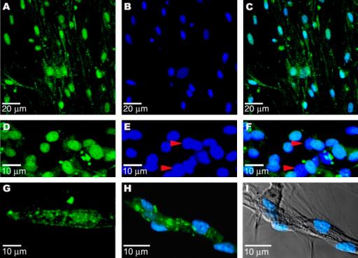 CPS Cells Stain Positive for Cardiac-Specific Proteins(A)							GATA-4 in day 7 CPS cells.						(B) Nuclear staining with DAPI.(C) Overlay of (A) and (B).(D) Nkx-2.5 is detected in the nuclei of round, day 21 beating cells (green).(E) Noncardiac cells (red arrowheads) do not show nuclear staining for Nkx-2.5.(F) Overlay of (D) and (E).(G) Beating cells, after 28 d in culture, stain positive for cardiac L-type Ca++ channel.(H) Connexin 43 (green) in cluster of uninucleate day 21 beating cells in culture.(I) Nomarski light micrograph (differential interference contrast) of cell cluster in (H).