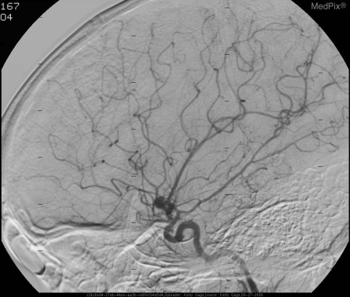 Lobulated aneurysm at the bifurcation of the internal carotid artery.