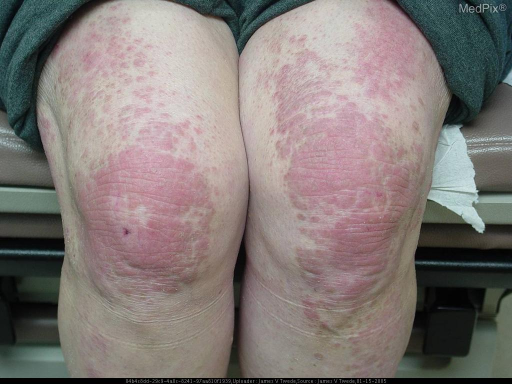Scalp: diffuse nonscarring alopecia, erythema and fine scales Face: heliotrope eruption on eyelids Arms: large violacious lichenified plaques in a photo- distrubution Back:: diffuse erythematous patch in a shawl-like distribution Hands: erythematous extensor tendon plaques; Gottron's papules over MCP and PIP joints Fingernails: proximal nail folds with dilated and tortuous capillaries with dropout and ragged cuticles Legs: violaceous plaques on knees and extensor thighs