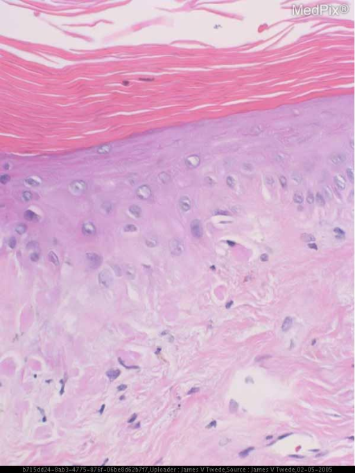 Histopathology: The biopsy shows epidermal atrophy with compact orthokeratotic hyperkeratosis, focal vacuolar interface dermatitis, dilated vessels, and an increase in dermal interstitial mucin.