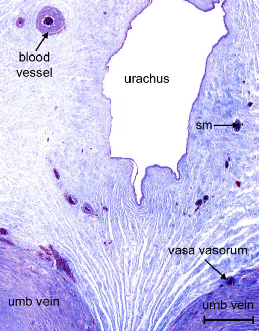 Umbilical cord of the tucuxi, Sotalia fluviatilis. Shown are part of the urachus and the paired umbilical veins with their vasa vasorum. The stroma is supplied with small blood vessels and contains bundles of smooth muscle (sm). Masson's triple stain. Scale bar = 500 μm.