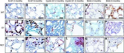 Immunohistochemistry for Ki-67 (A–F), Cyclin D1 (G–L) and BrdU stainings (M–R) in thyroid tissues from C57Bl/6, E7 and RET/PTC3. (A, G and M) 2-month C57Bl/6; (B, H and N) 6-month C57Bl/6; (C, I and O) 2 month E7; (D, J and P) 6-month E7; (E, K and Q) 2-month RET/PTC3; (F, L and R) 6-month RET/PTC3. Upper left part of (F) and upper right corner of (L): solid mass regions. (R): disorganized papillary tumour region. Original magnification: × 40; scale bar: 30 μm.