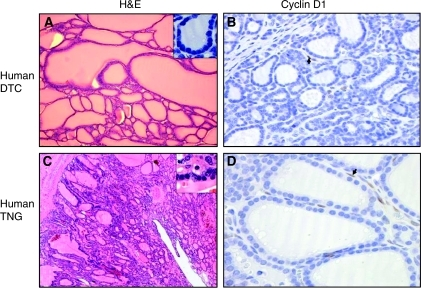 Haematoxylin–eosin and Cyclin D1 immunohistochemistry stainings of A and B: human differentiated thyroid carcinoma; (C and D) Human thyroid nodular goitre. Upper right inserts in A and C: small thyrocytes with high nuclear/cytoplasm ratio. Arrows in B and D: positive stromal cell nuclei for Cyclin D1. Original magnification: × 20 for A; × 60 for B; × 4 for C and × 40 for D.