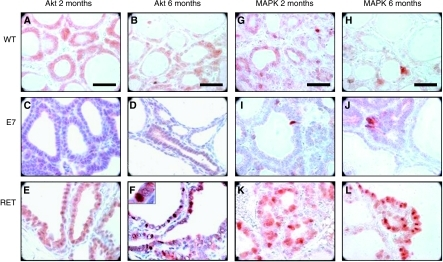 Immunohistochemistry for p-PKB/Akt (A–F) and p-MAPK (G–L) in thyroid tissues from C57Bl/6, E7 and RET/PTC3. (A and G) 2-month C57Bl/6; (B and H) 6-month C57Bl/6; (C and I) 2-month E7; (D and J) 6-months E7; (E and K) 2-month RET/PTC3; (F and L) 6-month RET/PTC3. Original magnification: × 100; scale bar: 30 μm.