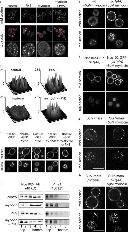 Nce102-GFP localization depends on sphingolipid levels. (a) Nce102-GFP was imaged under normal growth conditions (control), after addition of 5 µM myriocin for 1 h (myriocin), after sequential treatment with 5 µM myriocin for 1 h and 50 µM PHS for 15 min (myriocin→PHS), or after addition of 50 µM PHS for 15 min (PHS). Boxes indicate the area magnified in the bottom panels. (b) Fluorescence intensities of the area are shown plotted against xy image coordinates. (c) Nce102 redistribution is not dependent on new protein synthesis. Nce102-GFP cells were treated with myriocin or myriocin and PHS successively as in a after 10-min preincubation and continued presence of cycloheximide (CHX). (d) Nce102 partitions into detergent-resistant membranes dependent on sphingoid bases. Untreated Nce102-TAP–expressing cells and cells treated as in a were lysed in buffer containing 1% Triton X-100 and analyzed by gradient centrifugation and Western blotting against TAP (left). The same blots were probed with Pma1 antibodies (right). (e) pil1(4A)-GFP is resistant to disassembly after myriocin treatment. pil1(4A)-GFP–expressing cells were imaged after 1-h 5 µM myriocin incubation. (f) Redistribution of Nce102-GFP after myriocin treatment is independent of eisosome disassembly. Cells expressing pil1(4A) and Nce102-GFP were imaged before (left) and after 1 h treatment with 5 µM myriocin (right). (g and h) Sur7-mars does not behave like Nce102 after myriocin treatment. Wild-type Pil1 (g) or pil1(4A) (h) cells expressing Sur7-mars were treated with myriocin and imaged. wt, wild type. Bars, 5 µm.