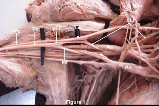 The Lateral root of the median nerve (Mn) had two parts ...