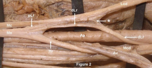 The distal part of the lateral root (dLr) after winding ...