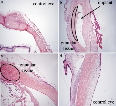 Histopathological evaluation of removed eyeballs: a 14th day without implant—congestion of sclera, with focal areas of resorption granular tissue, formed in nodules, localized around surgical suture; b 14th day with implant: the implant in central part surrounded by an abundant granular tissue; c 1 month without implant—abundant granular tissue; d 1 month with implant—the implant visible in the central part surrounded by unspecific partially resorption granular tissue, resorption granular tissue can be seen also sub conjunctivally, oedema of cillary body