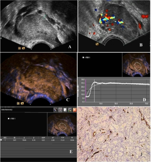 The CEUS and MVD of a poorly -differentiated serous adenocarcinoma of the ovary. (A) Two-dimensional transvaginal ultrasound showed a hypoechoic mass (4.9 cm × 3.0 cm × 3.3 cm) in the left adnexa with a clear boundary and heterogeneous echo. (B) Abundant blood flow signals can be seen in CDFI. (C) After 11.8 seconds of contrast agent injection, a rapid high enhancement can be seen. (D) A region of interest (ROI) within the tumor was taken to draw a TIC (white curve represents the tumor TIC). (E) The tumor TIC showed that AT was 11.8 seconds, TTP 18.41 seconds, PI is 26.64 dB, AUC 25.95. (F) MVD showed significantly increased interstitial microvessels (CD34, immunohistochemical staining, magnification 200×).
