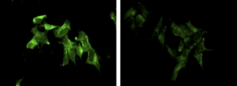 The alternative KCNIP4 splice variant Var IV (green) is prevalent in cells that make extra 38A (left) but rare in control cells (right).