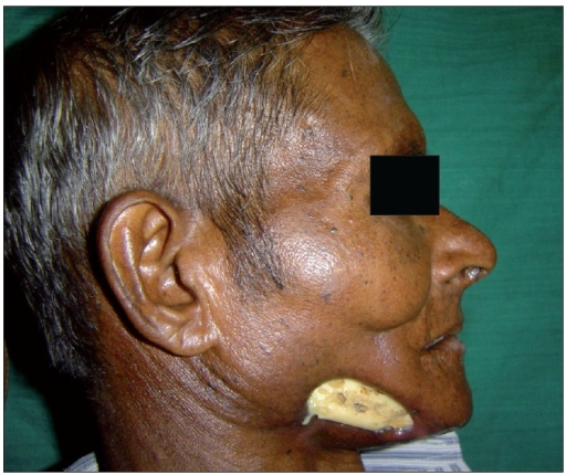 Image result for image of osteoradionecrosis