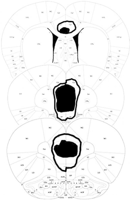 mPFC lesions in the present study. Damage common to all subjects is shown in black. The maximum extent of any damage is shown by the black line. Coronal sections are taken at 3.72 mm, 2.76 mm, and 1.08 mm anterior to bregma. Images adapted from Paxinos and Watson (2007).