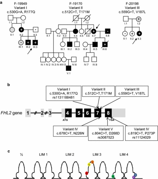 FHL2 genetic variants detected in patients with hypertrophic cardiomyopathy. a Pedigrees of families with HCM carrying FHL2 missense variants. Roman numerals symbolize generations. Arabic numerals mark individuals within each generation. Males are symbolized as squares, females as circles. Individuals with HCM are indicated by black symbols, individuals with an intermediate phenotype by gray symbols, unaffected individuals by empty symbols, and deceased individuals by a diagonal line. Index cases are indicated by arrows. Family members with a plus sign (+) carry the respective genetic variant at the heterozygous state; non-carriers are marked with a minus sign (−); individuals without signs were not genotyped. b Variants in the FHL2 gene. Exon numbers, and translational start (ATG) and stop (TGA) codons are indicated. Light gray squares represent noncoding regions. The FHL2 variants identified in HCM patients are depicted. c Localization of FHL2 genetic variants in the LIM domains