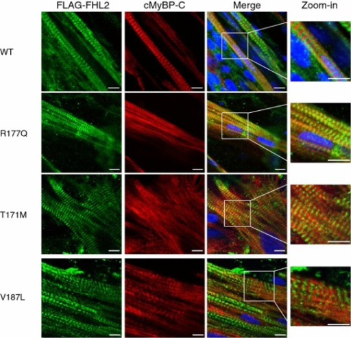 Immunofluorescence analysis of rat-engineered heart tissue transduced with FHL2 wild type or variants. EHTs were transduced with AAV6 encoding FLAG-tagged FHL2 wild type (WT) or mutants (R177Q, T171M, V187L) at a MOI of 1,000. After fixation at day 14, EHTs were stained with antibodies directed against the FLAG epitope (green) and cardiac myosin-binding protein C (cMyBP-C, red). Scale bars 10 µm