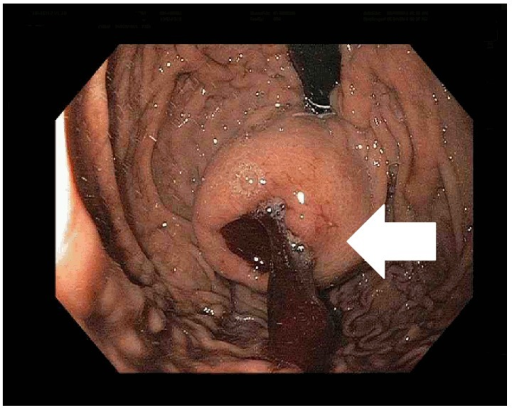Esophagogastroduodenoscopy (EGD) showing an ulcerated submucosal mass in the fundus of the stomach (white arrow).