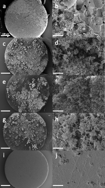 SEM images of all groups after the last treatment (d3). Specimens after treatment with the oral irrigator WF (a,b), the active sonic toothbrush WPa (c,d), the inactive sonic toothbrush WPi (e,f), the control group CO without treatment (g,h) and specimens without bacteria (i,j). Areas with shorn-off biofilm are shown in a) and b). Magnifications of 45x (a,c,g,e,I; scale bar = 100 μm) and 500x (b,d,f,h,j; scale bar = 10 μm) were used