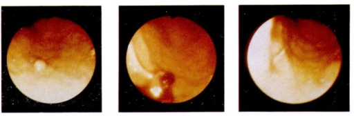 Gastroscopic finding of patient J.K.O.○ Left; gastric polyp in mid-body○ Center; 1 week after laser application○ Right; 5 week after laser application