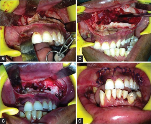 Intraoperative view – (a) Design of the paramedian unilateral Le Fort I osteotomy; (b) Unilateral disarticulation of the maxilla; (c) Fixation of the osteotomized unilateral maxilla; (d) Postoperative intraoral view of the patient showing anterior open bite correction