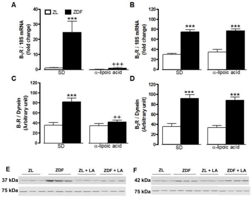 Effect of 6-week treatment with α-lipoic acid (LA) or standard diet (SD) on the expression of kinin B1R (A, C, E) and B2R (B, D, F) in the gastrocnemius skeletal muscle of 12 weeks Zucker diabetic fatty (ZDF) rats and age-matched Zucker lean (ZL) rats. Shown are mRNA (A, B) and protein (C–F) expression levels of B1R (37 kDa) and B2R (42 kDa). Dynein (75 kDa) and 18S mRNA were used as standards. Data are the mean ± S.E.M of 3–8 rats/group. Statistical comparison with ZL (*) and ZD (+) in SD is indicated by ++ P<0.01; ***,+++ P<0.001.