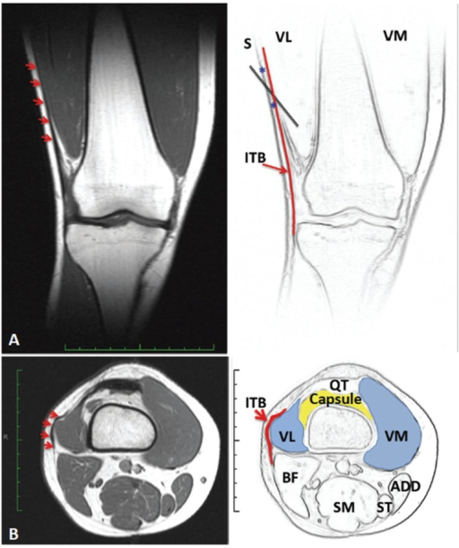 Coronal plane MRI (A) to highlight the relationship of the Iliotibial band to the Vastus Lateralis muscle (red arrows). Axial plane MRI to highlight the anatomy at the level of the superior pole of the patella (B). Note the proximity of the lateral joint capsule (supra-patella pouch) to the distal end of the VL and the overlying ITB to the VL muscle (red arrows); Legend: VM = vastus medialis, VL = Vastus lateralis, ITB = Iliotibial band, BF = Biceps femoris, SM = Semimebranosus, ST = Semitendinosus, ADD = Adductors, QT = Quadriceps tendon.
