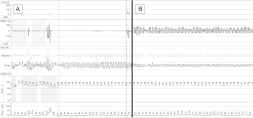Two 5-min sections from Somnologica software showing a period of complete nasal obstruction (marked by broken lines) preceded by genuine apnoea (A). Note normal RP and SpO2 during this period. A section of normal trace is shown from later in the study for comparison (B).