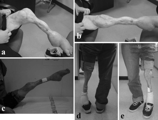 On last visit, knee flexion was 90° (a), extension was full (b, c); patient ambulated with an equinus deformity (d, e)