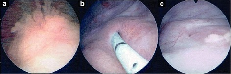 Cystoscopy (a–c) shows that the bladder tumor had shrunk. The three pictures were taken over the course of the treatment