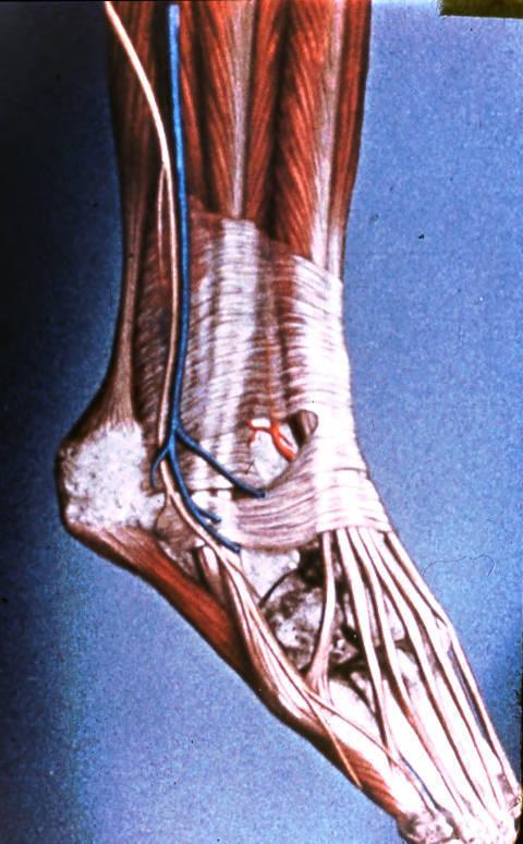 tibialis anterior muscle; extensor digitorum longus mus | Open-i