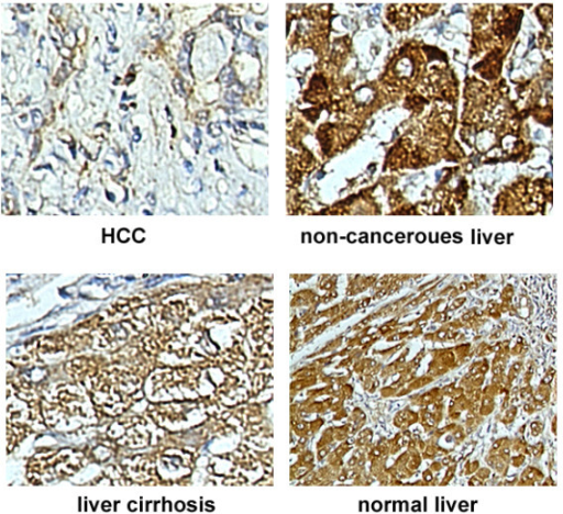 KIAA 0101 expression in tissue array was analyzed by immunohistochemistry (ISH) examination. The tissue array showed different levels of KIAA0101 protein expression in paired HCC and non-cancerous tissues, liver cirrhosis and normal liver tissues by ISH method. Weak expression of KIAA0101 was observed in HCC; while strong expression in its counterpart non-cancerous liver tissue. In 8 out of 13 liver cirrhosis and all 10 normal liver tissues, KIAA0101 protein expression level were strong(+++) or moderate(++) level.
