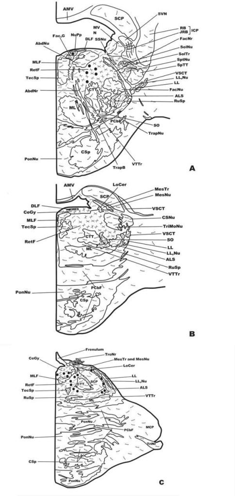 Distribution of NK-ir fibers and cell bodies in frontal planes of the human brainstem from the caudal (Fig. 1A) to the anterior (Fig. 3C) levels. Cell bodies containing neurokinin are represented by closed circles, whereas immunoreactive fibers are represented by dotted lines (single fibers or low density), continuous lines (moderate density) and crossed lines (high density). See list of abbreviations for nomenclature.