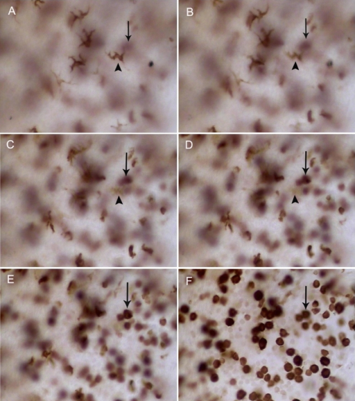 CD163+ cells displayed different morphologies at different layers in the iris 48 h after LPS injection. This figure shows different stromal layers from the epithelial to endothelial (from A to F) in the same field. Dendritiform cells are located in the stroma adjacent to the epithelial layer (A) while round-pleiomorphic cells are adjacent to the endothelial layer (F). The cells that arrows and arrowheads point to represent the same cells, respectively. Original magnification: A–F 400X.